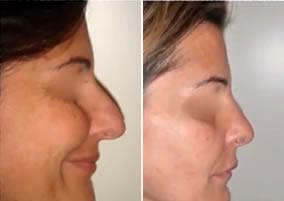 prima_dopo_chirurgia_estetica2